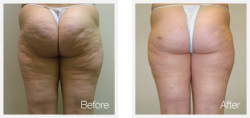 cellulite-cupping-inch-loss